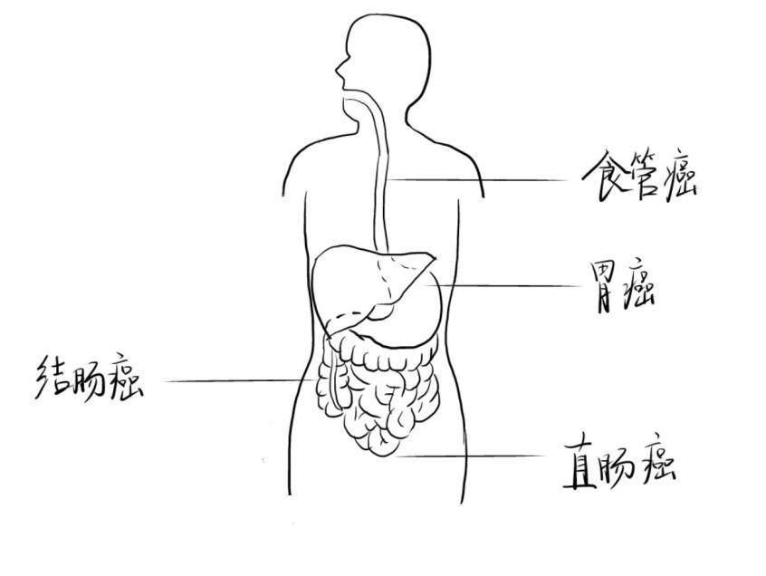 1.人体消化道肿瘤.jpg